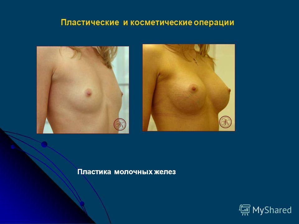 Пластические и косметические операции Ринопластика Реконструктивные операции лица Реконструкция уха