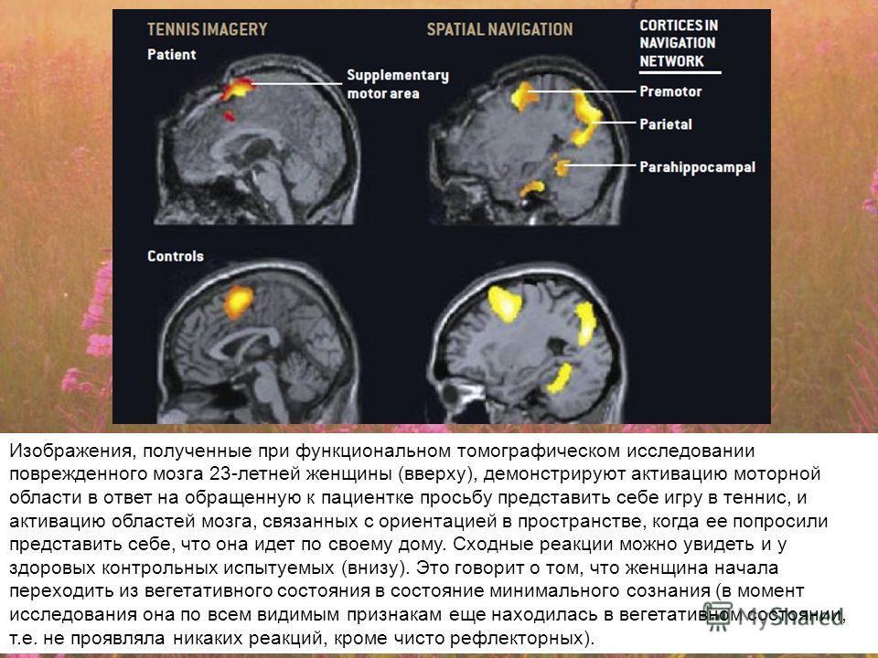 Изображения, полученные при функциональном томографическом исследовании поврежденного мозга 23-летней женщины (вверху), демонстрируют активацию моторной области в ответ на обращенную к пациентке просьбу представить себе игру в теннис, и активацию обл