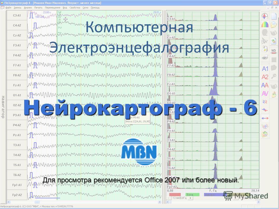 Компьютерная Электроэнцефалография Нейрокартограф - 6 Для просмотра рекомендуется Office 2007 или более новый.