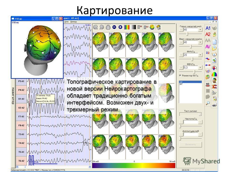 Картирование Топографическое картирование в новой версии Нейрокартографа обладает традиционно богатым интерфейсом. Возможен двух- и трехмерный режим.
