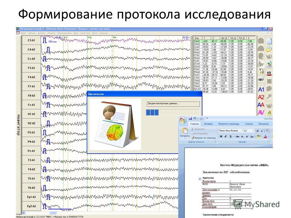 Формирование протокола исследования
