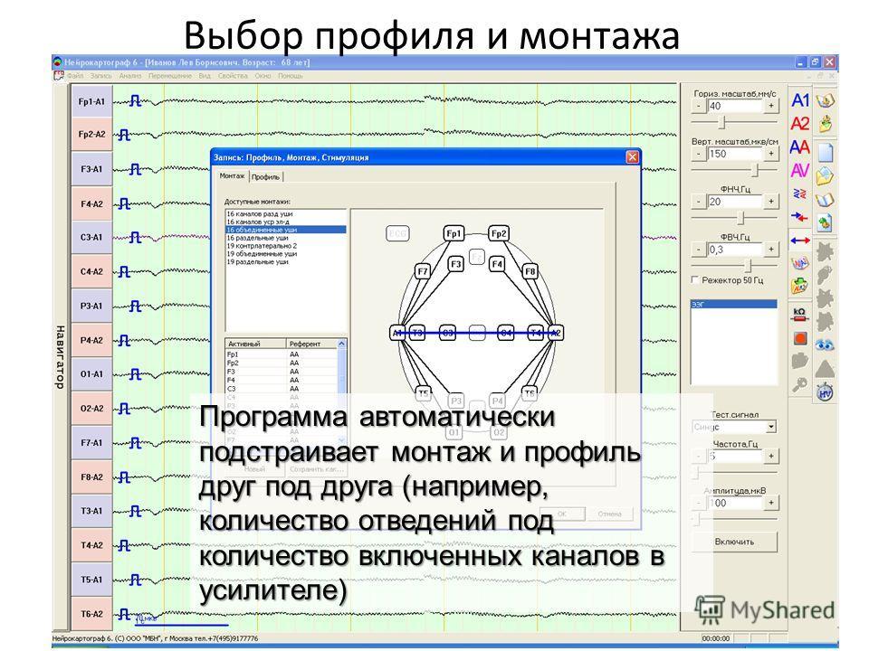 Выбор профиля и монтажа Программа автоматически подстраивает монтаж и профиль друг под друга (например, количество отведений под количество включенных каналов в усилителе)