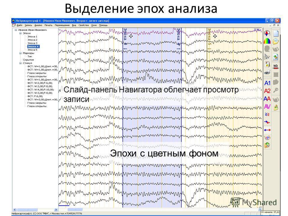 Выделение эпох анализа Эпохи с цветным фоном Слайд-панель Навигатора облегчает просмотр записи