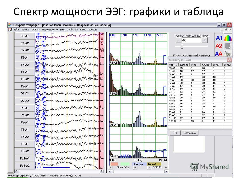 Спектр мощности ЭЭГ: графики и таблица