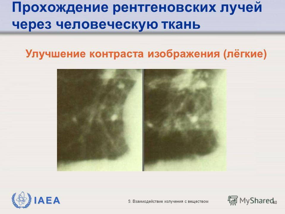 IAEA 5: Взаимодействие излучения с веществом Прохождение рентгеновских лучей через человеческую ткань Улучшение контраста изображения (лёгкие) 40