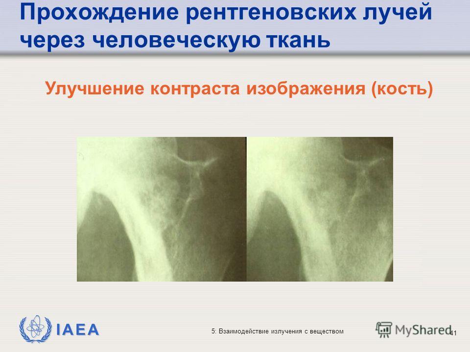 IAEA 5: Взаимодействие излучения с веществом Прохождение рентгеновских лучей через человеческую ткань Улучшение контраста изображения (кость) 41