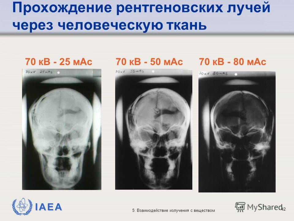 IAEA 5: Взаимодействие излучения с веществом Прохождение рентгеновских лучей через человеческую ткань 70 кВ - 25 мАс70 кВ - 50 мАс70 кВ - 80 мАс 42