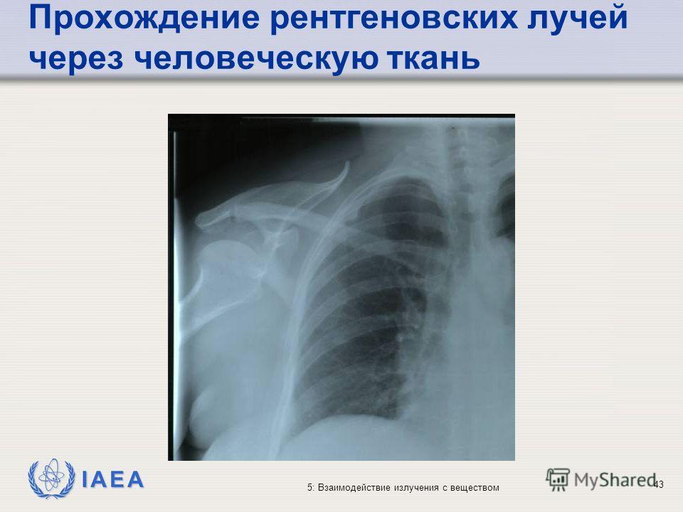 IAEA 5: Взаимодействие излучения с веществом Прохождение рентгеновских лучей через человеческую ткань 43