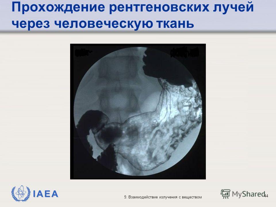 IAEA 5: Взаимодействие излучения с веществом Прохождение рентгеновских лучей через человеческую ткань 44