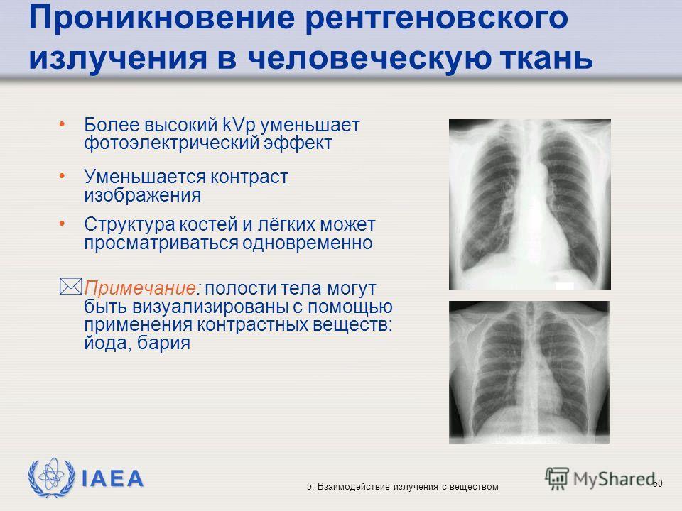 IAEA 5: Взаимодействие излучения с веществом Проникновение рентгеновского излучения в человеческую ткань Более высокий kVp уменьшает фотоэлектрический эффект Уменьшается контраст изображения Структура костей и лёгких может просматриваться одновременн
