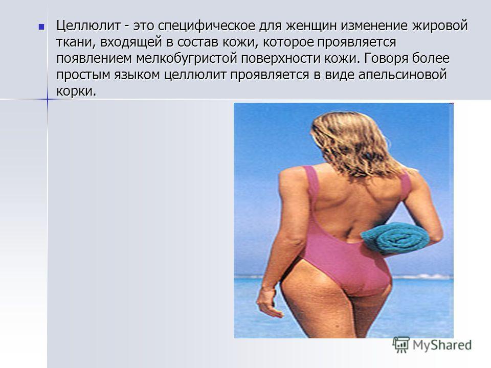 Целлюлит - это специфическое для женщин изменение жировой ткани, входящей в состав кожи, которое проявляется появлением мелкобугристой поверхности кожи. Говоря более простым языком целлюлит проявляется в виде апельсиновой корки. Целлюлит - это специф