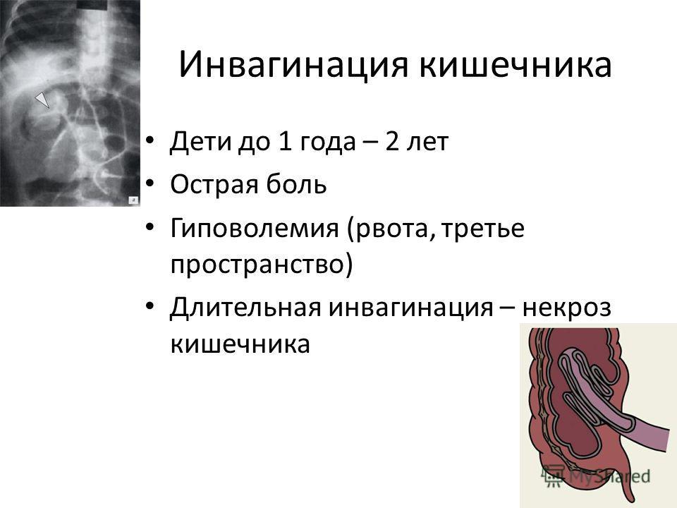 Инвагинация кишечника Дети до 1 года – 2 лет Острая боль Гиповолемия (рвота, третье пространство) Длительная инвагинация – некроз кишечника
