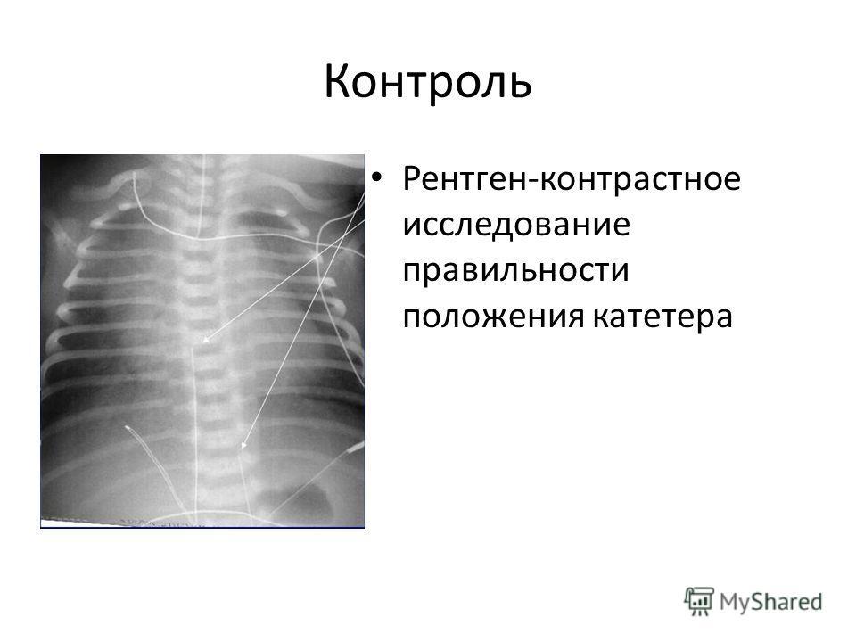 Контроль Рентген-контрастное исследование правильности положения катетера
