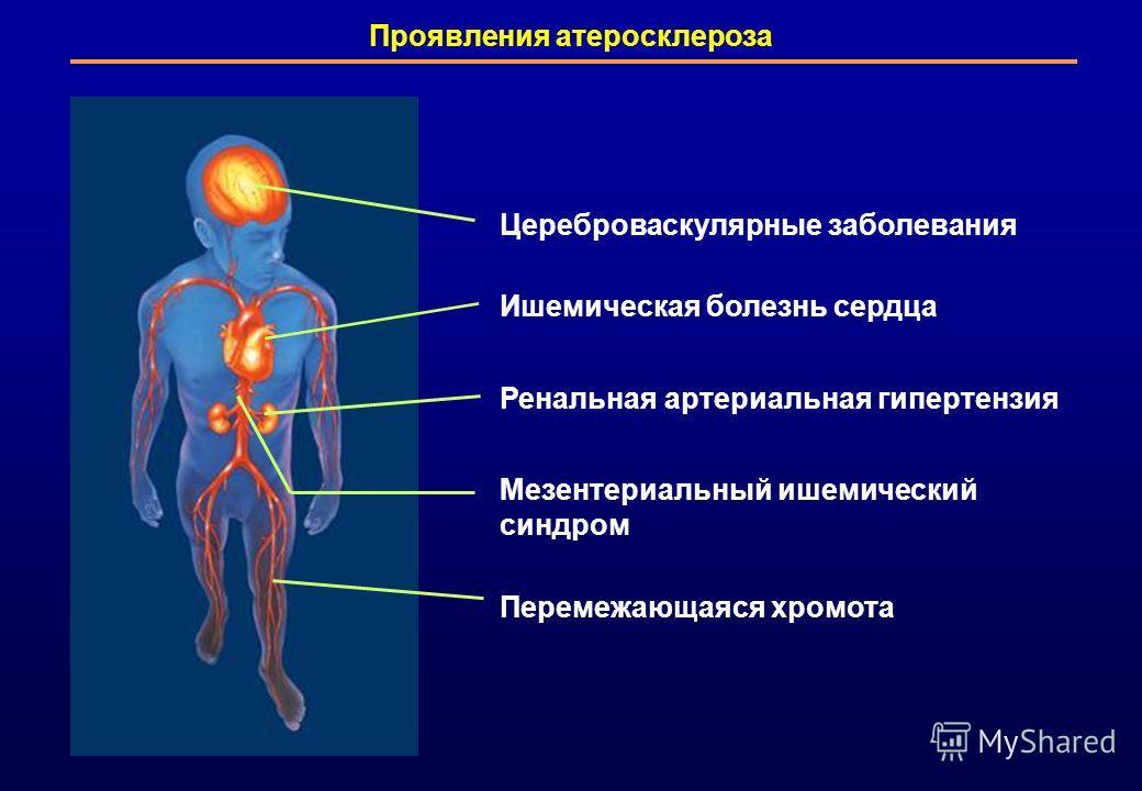 Цереброваскулярные заболевания Ишемическая болезнь сердца Ренальная артериальная гипертензия Мезентериальный ишемический синдром Перемежающаяся хромота Проявления атеросклероза