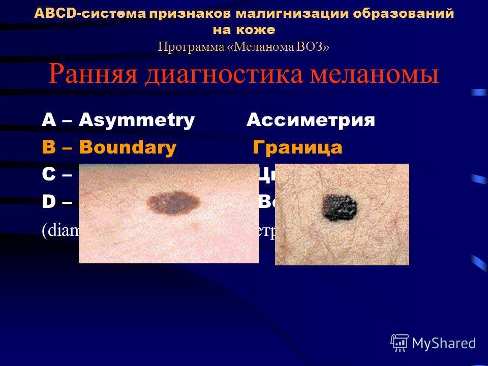 ABCD-система признаков малигнизации образований на коже Программа «Меланома ВОЗ» Ранняя диагностика меланомы A – Asymmetry Ассиметрия В – Boundary Граница С – Colour Цвет D – Dimension Величина (diameter > 6 mm) (диаметр > 6 мм)