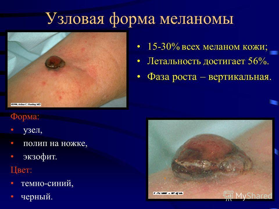 Узловая форма меланомы 15-30% всех меланом кожи; Летальность достигает 56%. Фаза роста – вертикальная. Форма: узел, полип на ножке, экзофит. Цвет: темно-синий, черный.