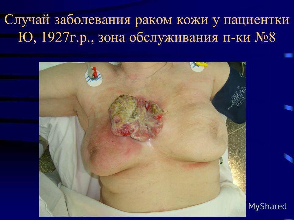 Случай заболевания раком кожи у пациентки Ю, 1927г.р., зона обслуживания п-ки 8