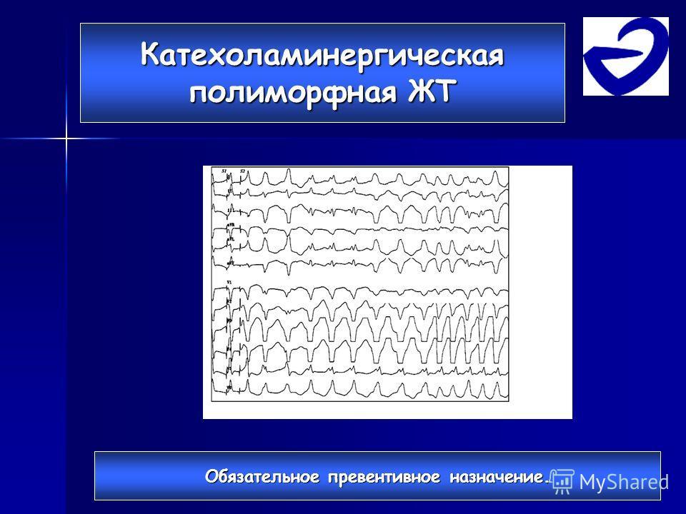 Катехоламинергическая полиморфная ЖТ Обязательное превентивное назначение.