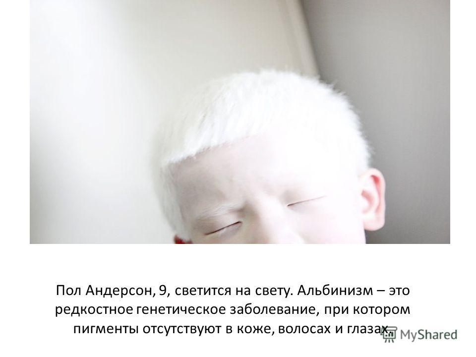 Пол Андерсон, 9, светится на свету. Альбинизм – это редкостное генетическое заболевание, при котором пигменты отсутствуют в коже, волосах и глазах.