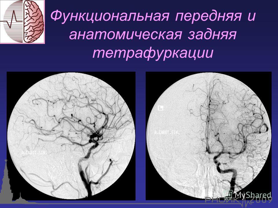 Функциональная передняя и анатомическая задняя тетрафуркации