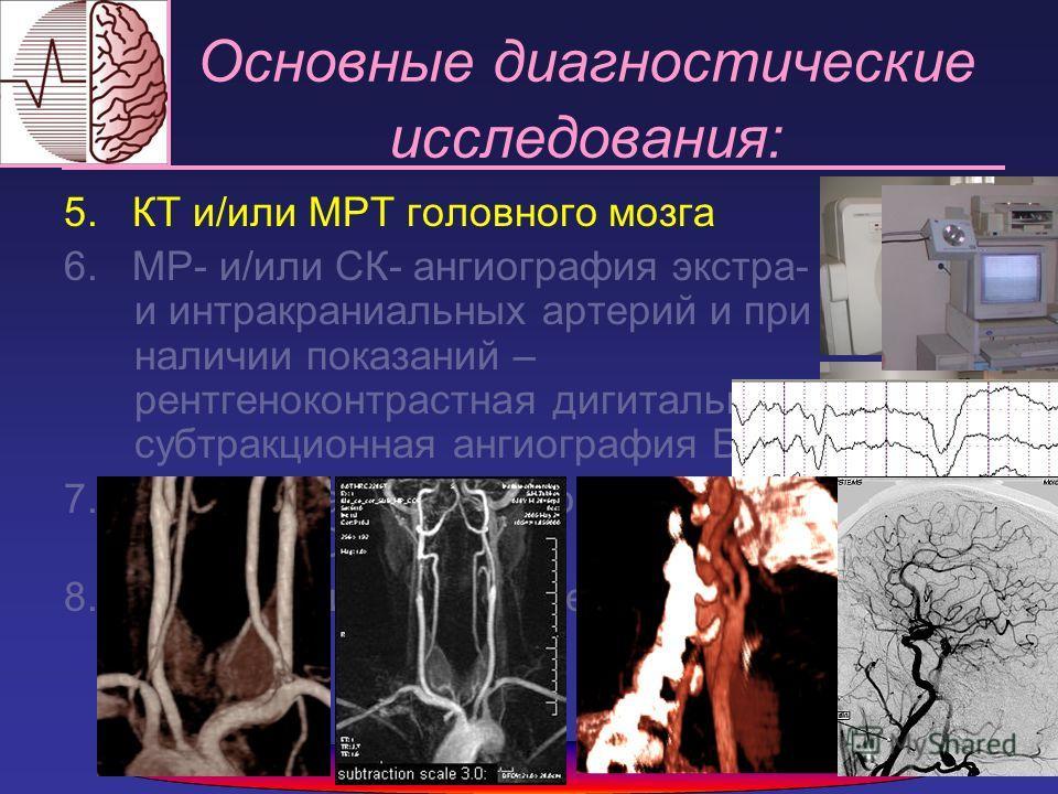 5. КТ и/или МРТ головного мозга 6. МР- и/или СК- ангиография экстра- и интракраниальных артерий и при наличии показаний – рентгеноконтрастная дигитальная субтракционная ангиография БЦА 7. Исследование мозгового кровотока методом ОФЭКТ 8. Нейрофизиоло