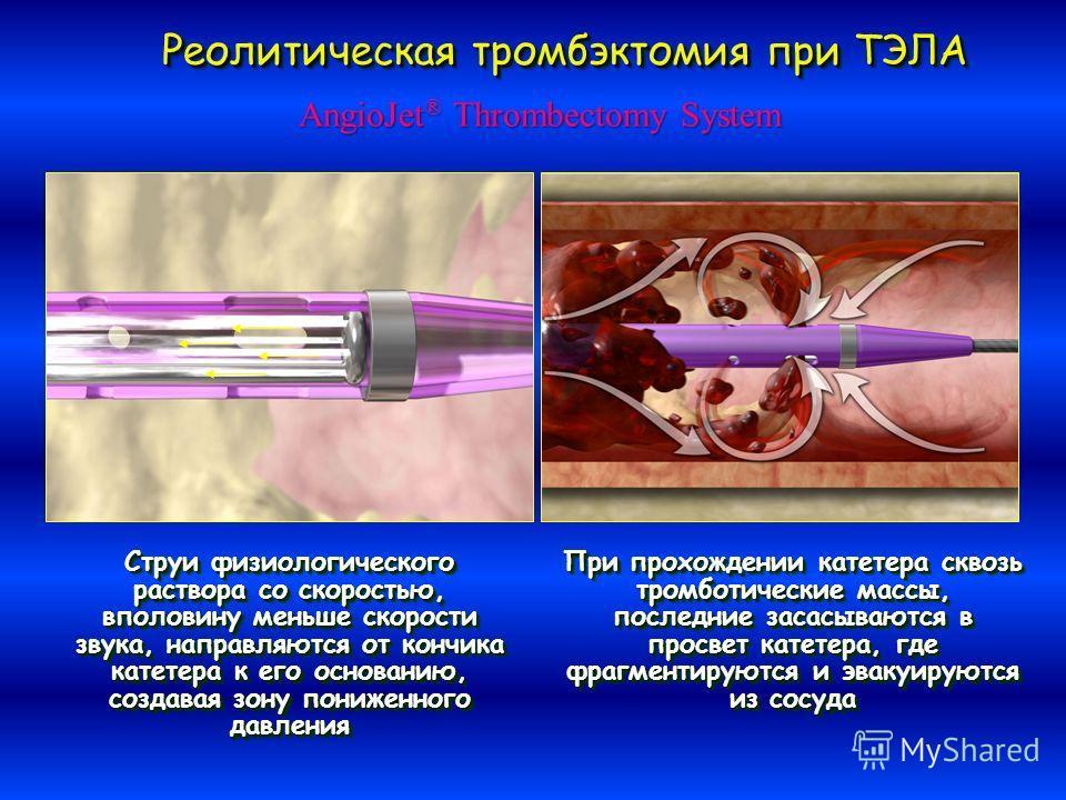Струи физиологического раствора со скоростью, вполовину меньше скорости звука, направляются от кончика катетера к его основанию, создавая зону пониженного давления При прохождении катетера сквозь тромботические массы, последние засасываются в просвет