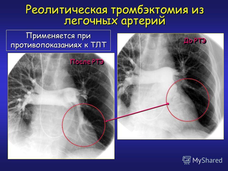Реолитическая тромбэктомия из легочных артерий Применяется при противопоказаниях к ТЛТ До РТЭ После РТЭ