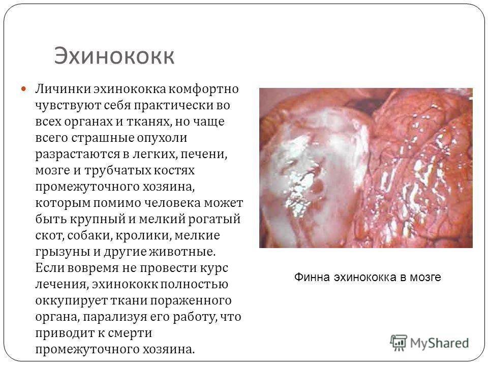 паразиты мозге человека лечение