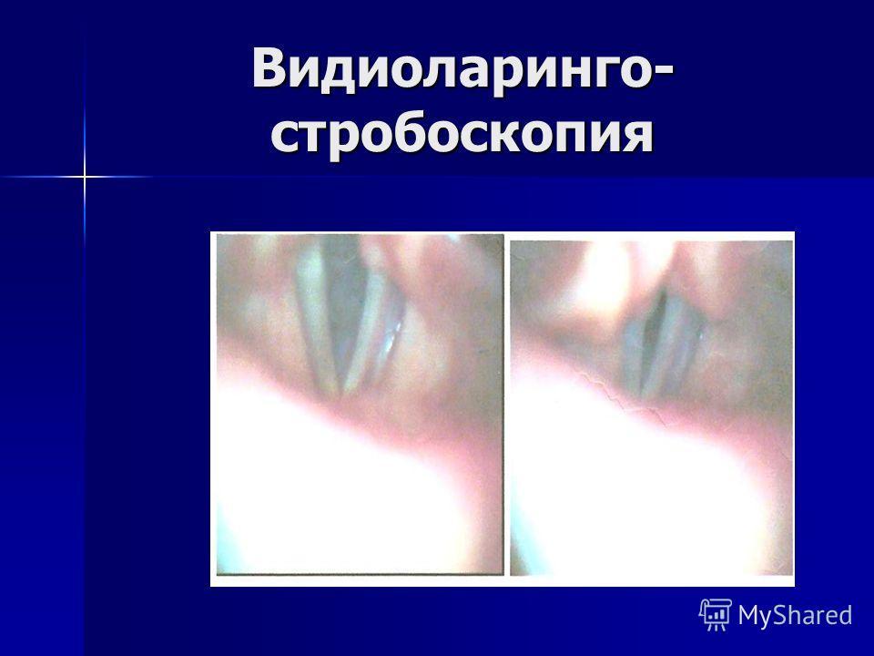 Видиоларинго- стробоскопия