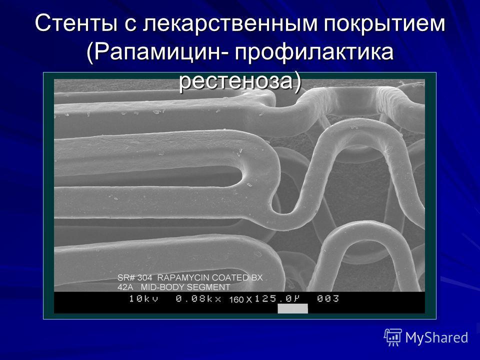 Стенты с лекарственным покрытием (Рапамицин- профилактика рестеноза)