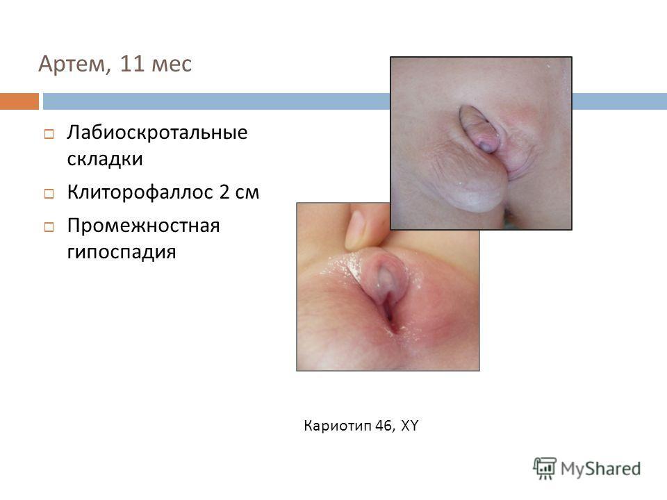 Артем, 11 мес Лабиоскротальные складки Клиторофаллос 2 см Промежностная гипоспадия Кариотип 46, XY