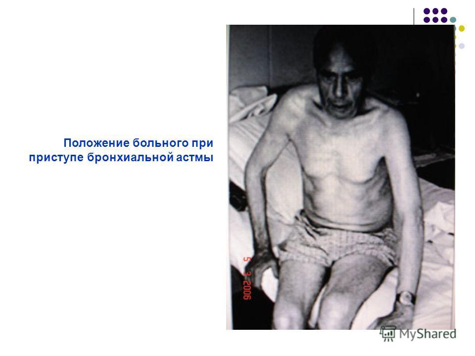 Положение больного при приступе бронхиальной астмы
