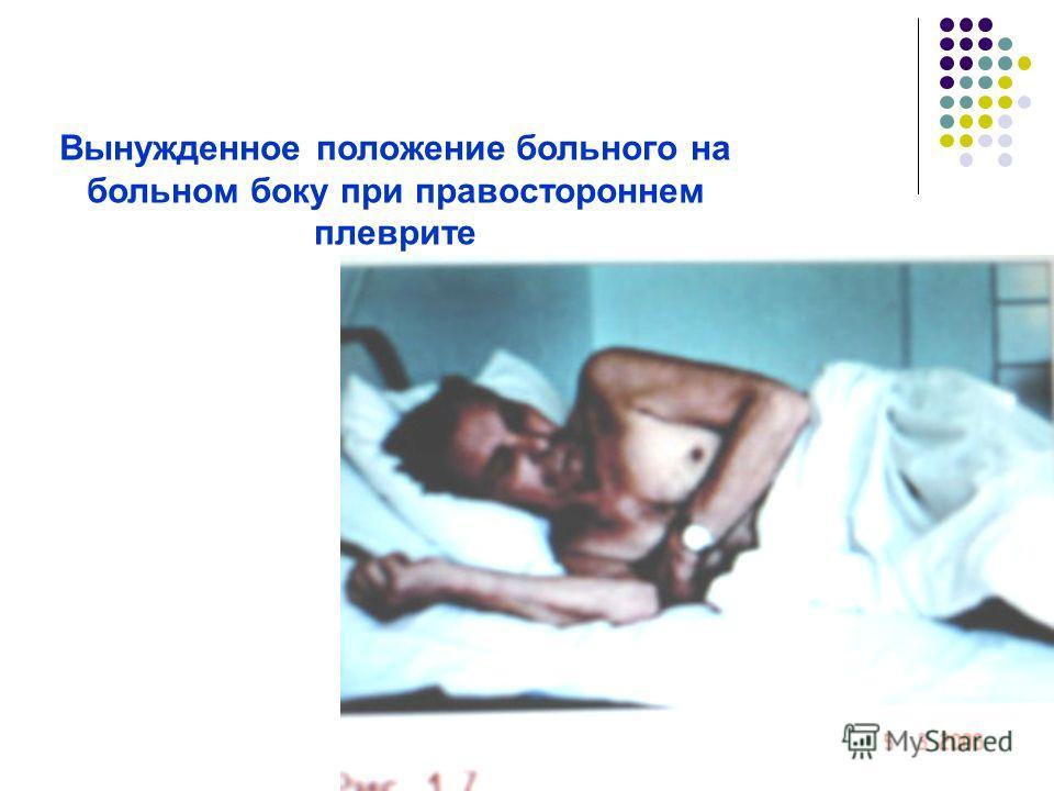 Вынужденное положение больного на больном боку при правостороннем плеврите