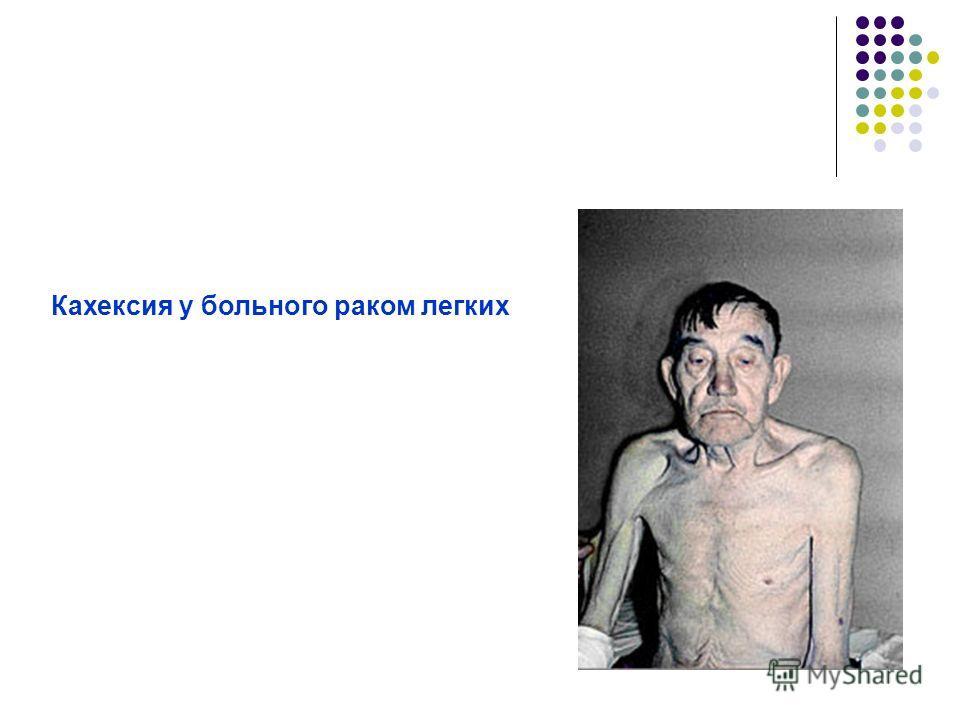 Кахексия у больного раком легких