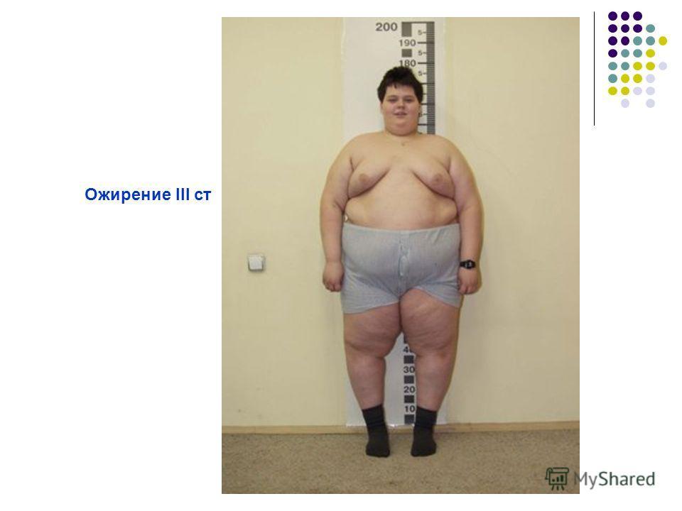 Ожирение III ст