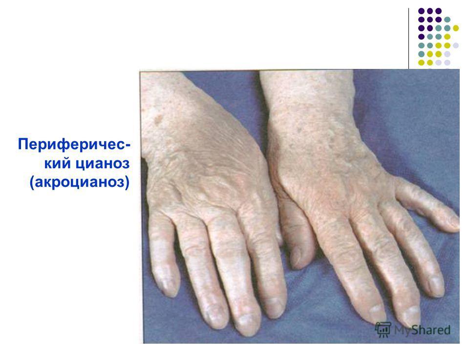 Периферичес- кий цианоз (акроцианоз)