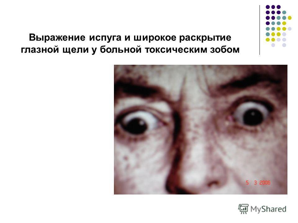 Выражение испуга и широкое раскрытие глазной щели у больной токсическим зобом