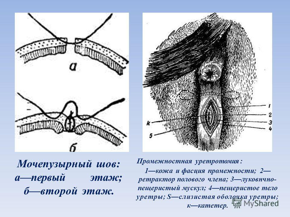 Уретеротомия фото
