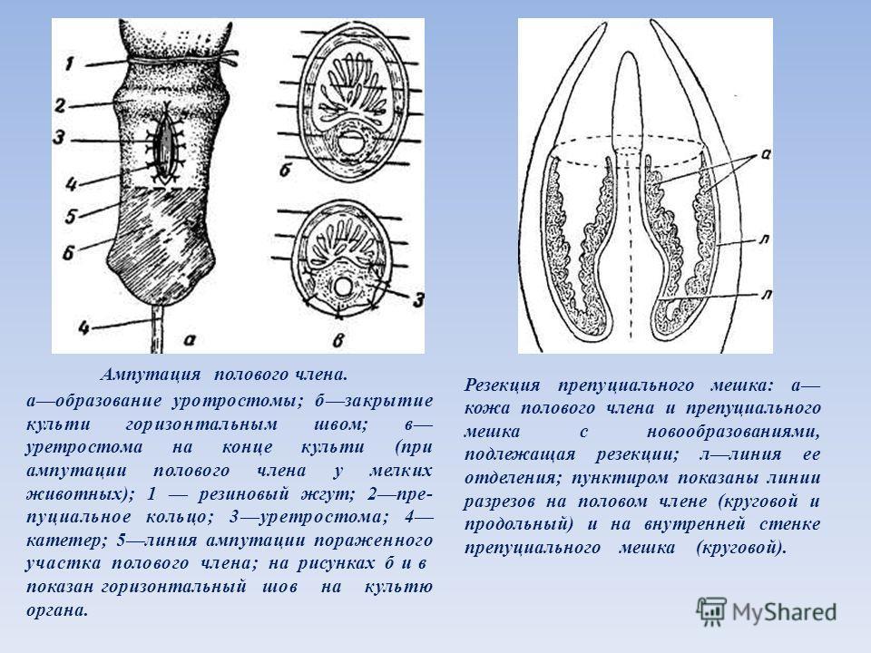 Ампутация полового члена. аобразование уротростомы; бзакрытие культи горизонтальным швом; в уретростома на конце культи (при ампутации полового члена у мелких животных); 1 резиновый жгут; 2пре- пуциальное кольцо; 3уретростома; 4 катетер; 5линия ампут