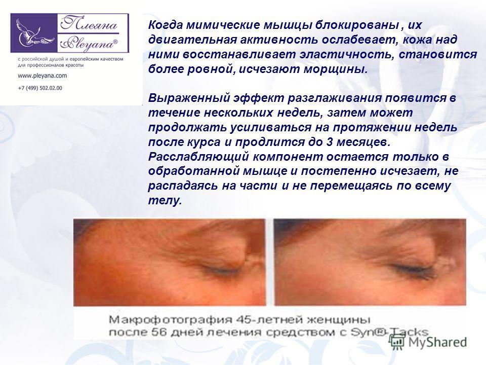 Когда мимические мышцы блокированы, их двигательная активность ослабевает, кожа над ними восстанавливает эластичность, становится более ровной, исчезают морщины. Выраженный эффект разглаживания появится в течение нескольких недель, затем может продол