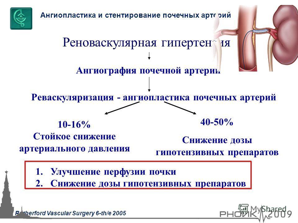 Ангиография почечной артерии 10-16% Стойкое снижение артериального давления Реноваскулярная гипертензия Реваскуляризация - ангиопластика почечных артерий 40-50% Снижение дозы гипотензивных препаратов Ангиопластика и стентирование почечных артерий 1.У