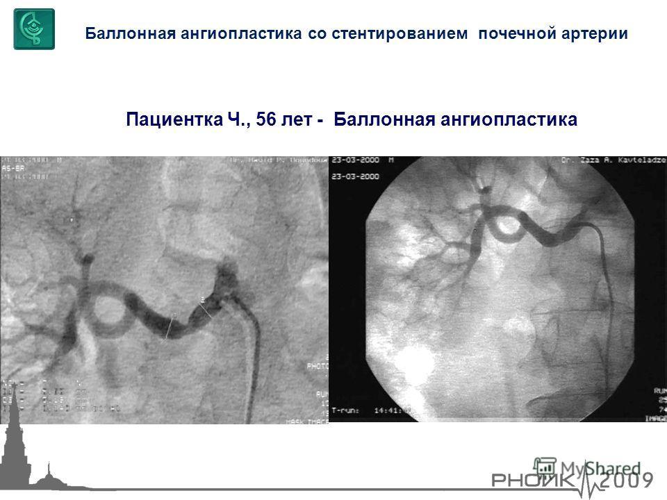 Баллонная ангиопластика со стентированием почечной артерии Пациентка Ч., 56 лет - Баллонная ангиопластика