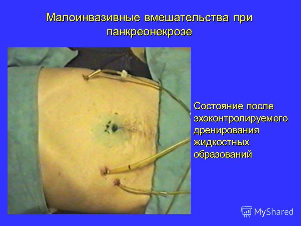 Малоинвазивные вмешательства при панкреонекрозе Состояние после эхоконтролируемого дренирования жидкостных образований