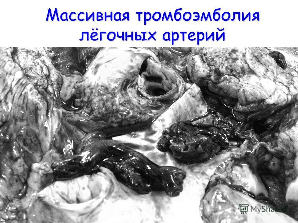 Массивная тромбоэмболия лёгочных артерий