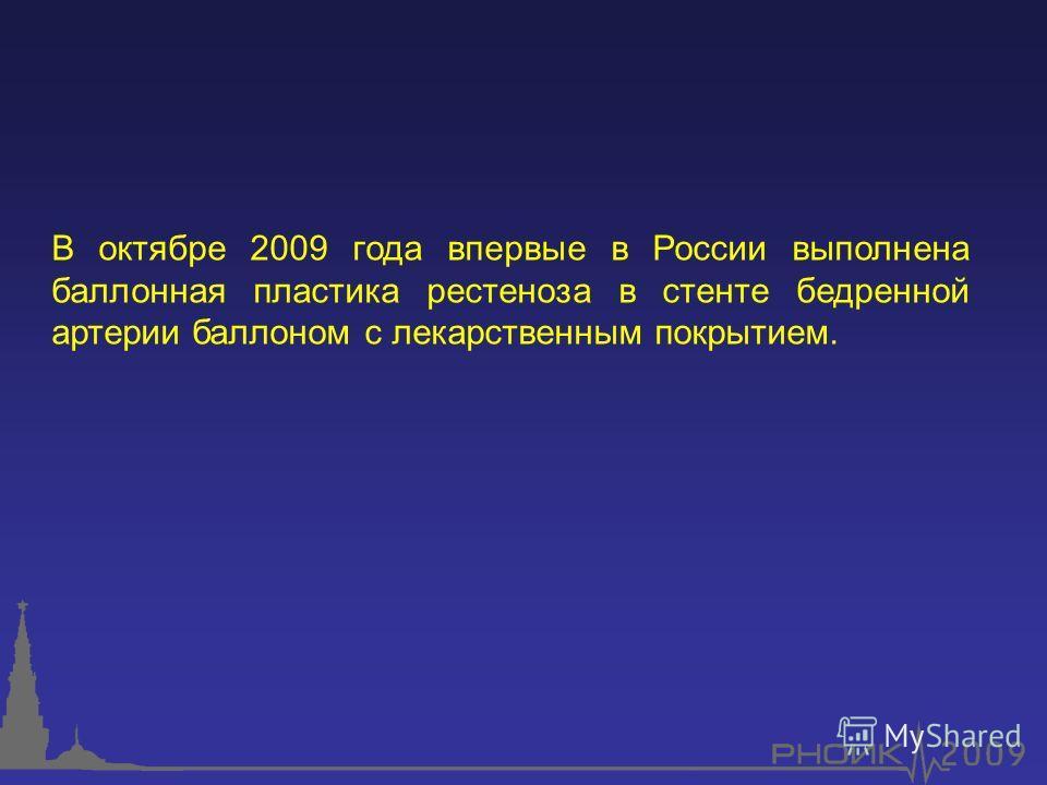 В октябре 2009 года впервые в России выполнена баллонная пластика рестеноза в стенте бедренной артерии баллоном с лекарственным покрытием.