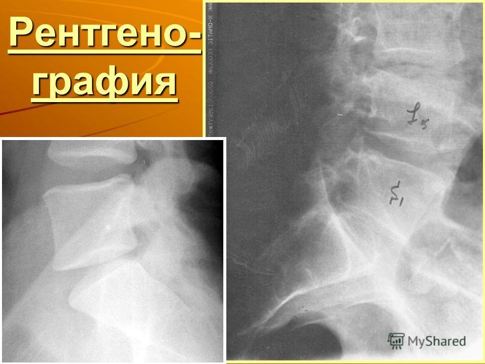 Рентгено- графия