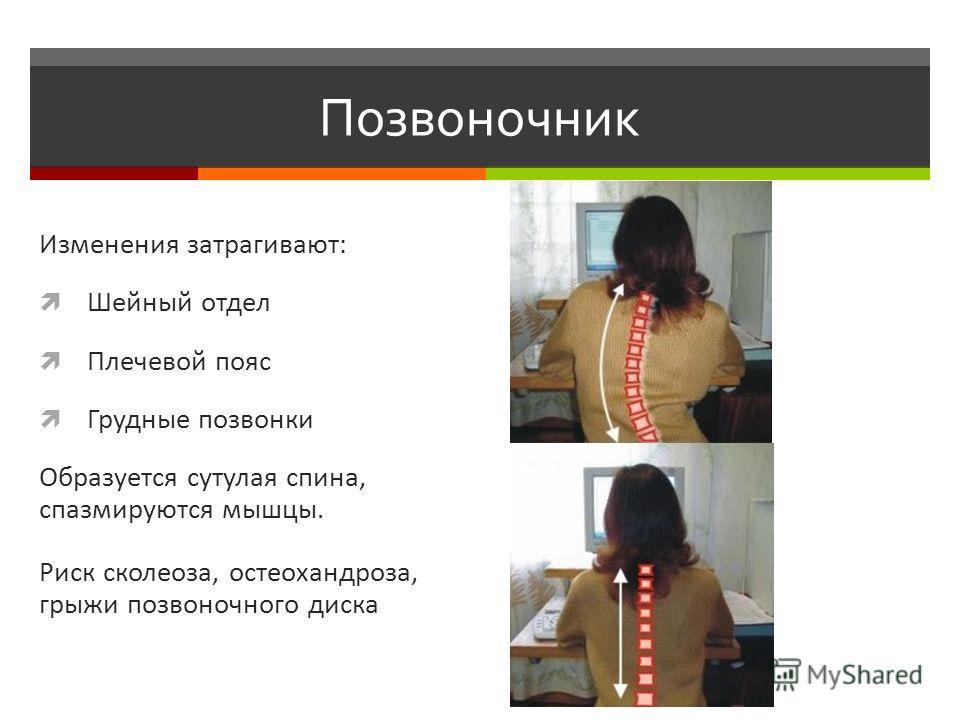 Позвоночник Изменения затрагивают: Шейный отдел Плечевой пояс Грудные позвонки Образуется сутулая спина, спазмируются мышцы. Риск сколеоза, остеохандроза, грыжи позвоночного диска