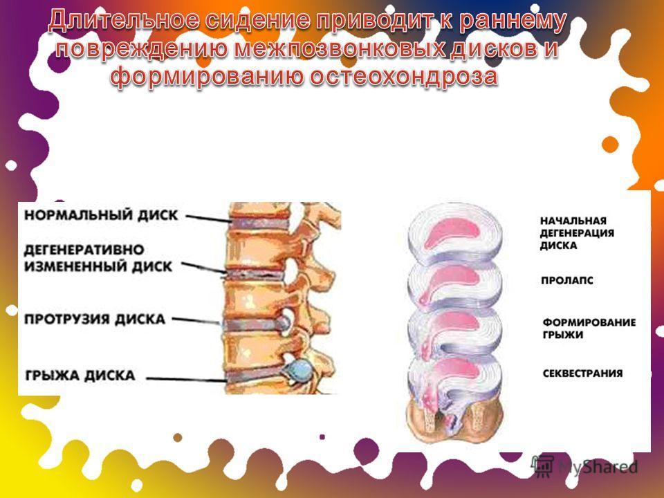 Длительное сидение приводит к раннему повреждению межпозвонковых дисков и формированию остеохондроза Длительное сидение приводит к раннему повреждению межпозвонковых дисков и формированию остеохондроза