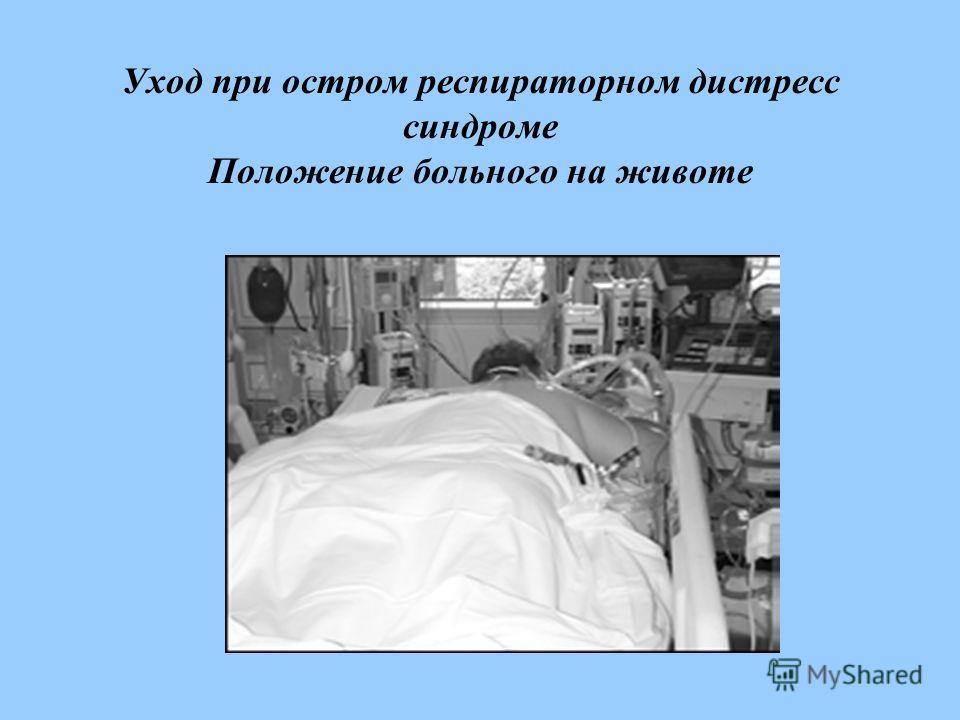 Уход при остром респираторном дистресс синдроме Положение больного на животе