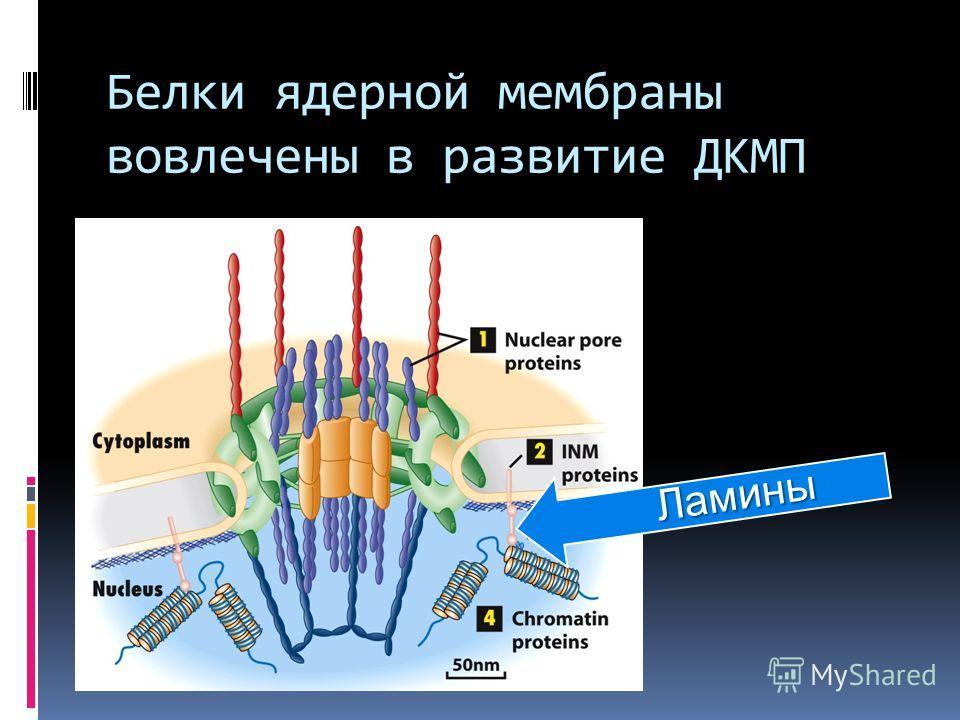 Белки ядерной мембраны вовлечены в развитие ДКМП Ламины